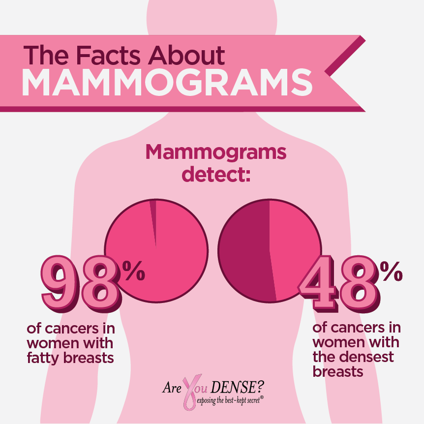 are-you-dense-mammogram.png